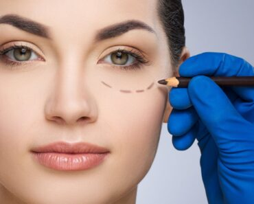 How To Reduce Under Eye Bags